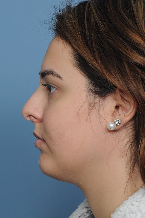Rhinoplasty Gallery - Patient 8376727 - Image 5