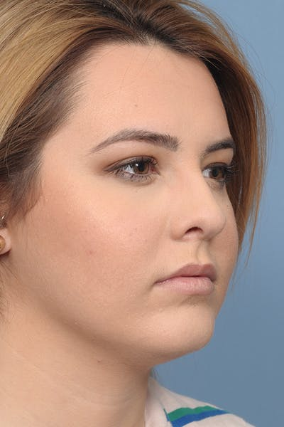 Rhinoplasty Gallery - Patient 8376727 - Image 8