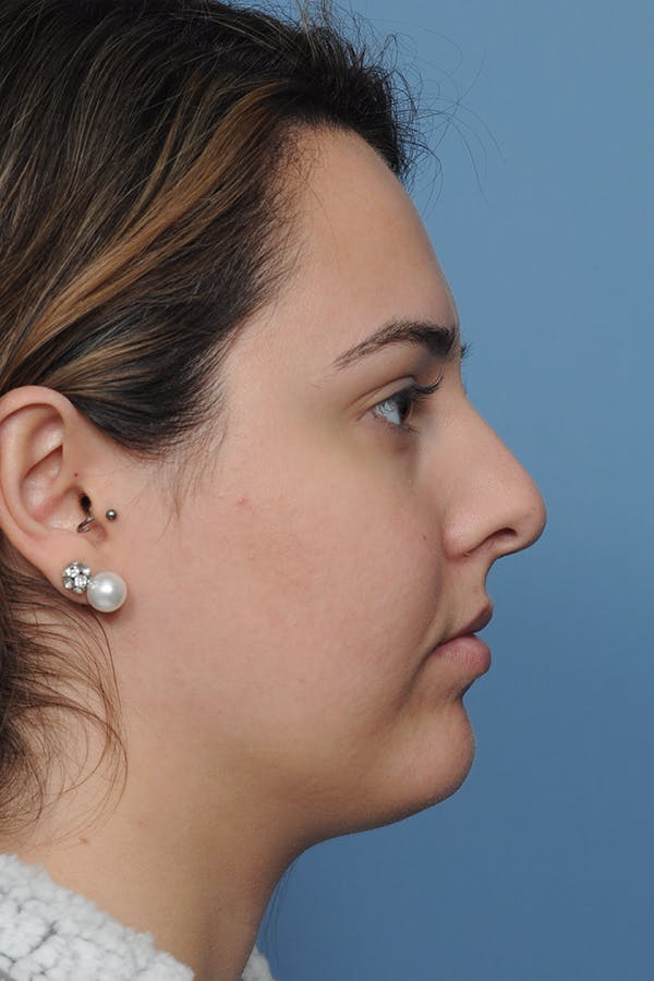 Rhinoplasty Gallery - Patient 8376727 - Image 9