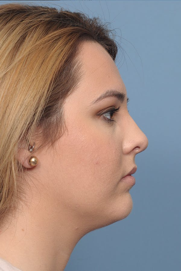 Rhinoplasty Gallery - Patient 8376727 - Image 10