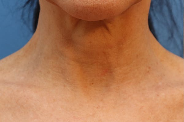 Exosome Facial Gallery - Patient 32763210 - Image 3