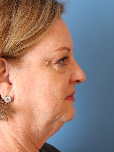 Blemish & Mole Removal Gallery - Patient 32769518 - Image 1