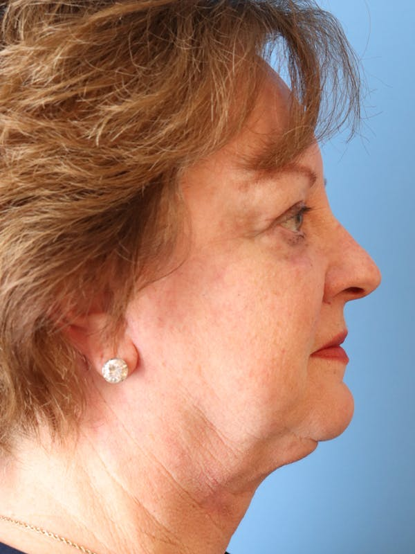 Blemish & Mole Removal Gallery - Patient 32769518 - Image 2