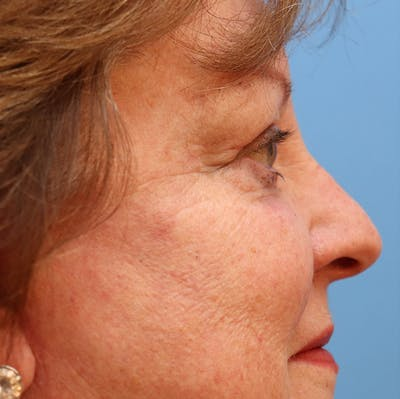 Blemish & Mole Removal Gallery - Patient 32769518 - Image 6