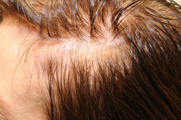 Hair Restoration with Exosomes Gallery - Patient 32769537 - Image 3