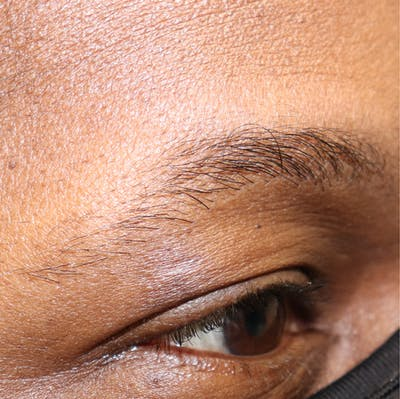 Hair Restoration with Extracellular Vesicles Gallery - Patient 32769538 - Image 2