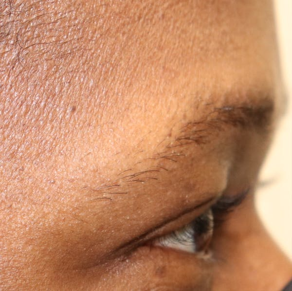Hair Restoration with Extracellular Vesicles Gallery - Patient 32769538 - Image 3