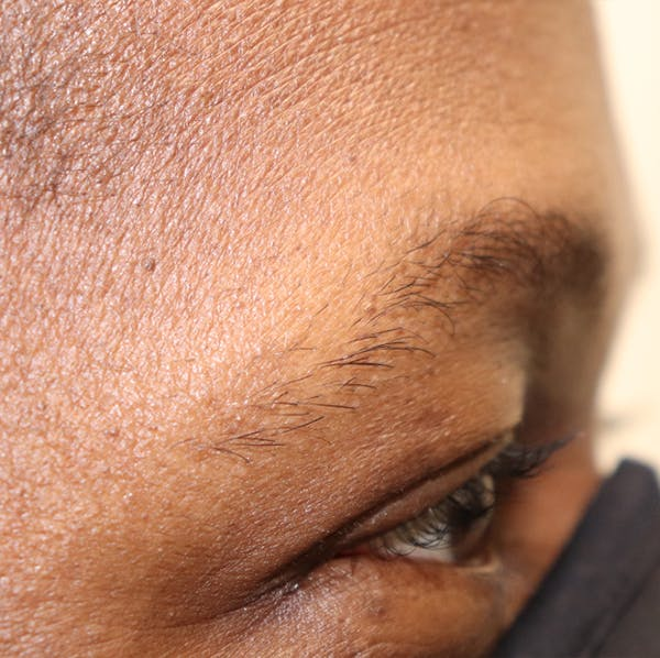 Hair Restoration with Extracellular Vesicles Gallery - Patient 32769538 - Image 4