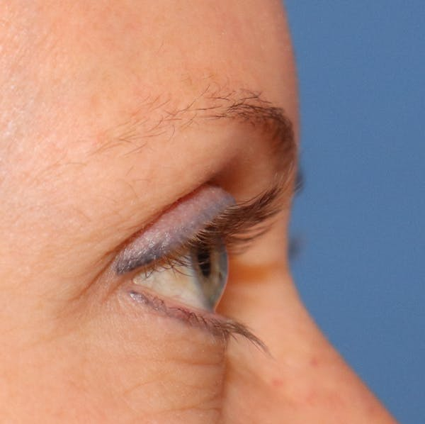 Hair Restoration with Exosomes Gallery - Patient 32769539 - Image 1