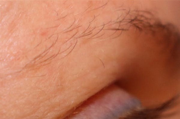 Hair Restoration with Extracellular Vesicles Gallery - Patient 32769539 - Image 4