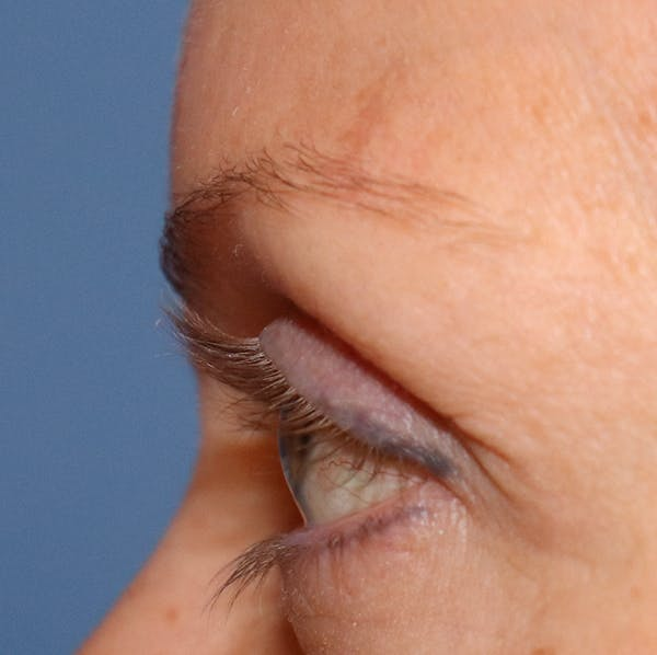 Hair Restoration with Exosomes Gallery - Patient 32769539 - Image 5