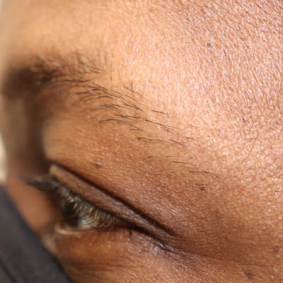 Hair Restoration with Extracellular Vesicles Gallery - Patient 32769538 - Image 8