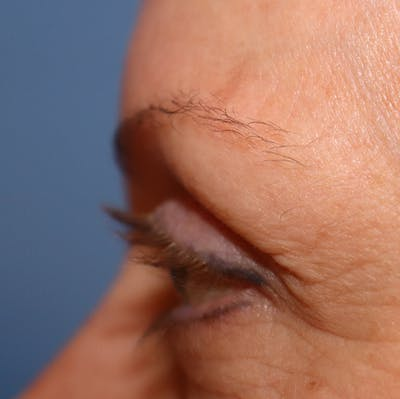 Hair Restoration with Extracellular Vesicles Gallery - Patient 32769539 - Image 6