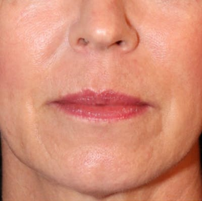 Exosome Facial Gallery - Patient 21141165 - Image 2
