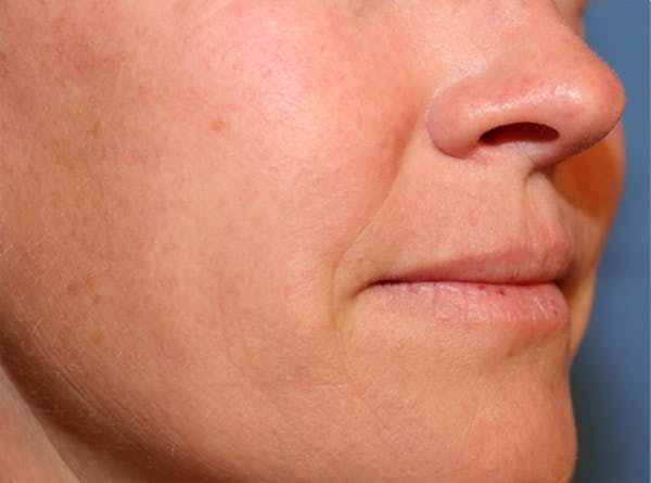 Exosome Facial Gallery - Patient 32763208 - Image 2