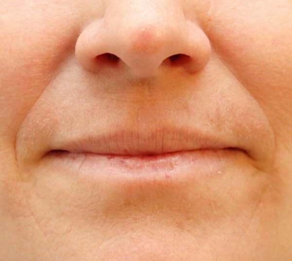 Exosome Facial Gallery - Patient 32763208 - Image 4