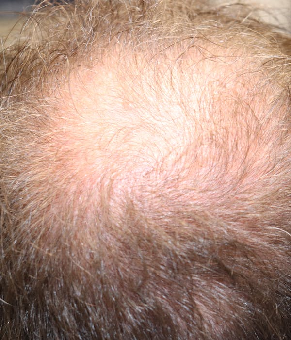Hair Restoration with Exosomes Gallery - Patient 37796886 - Image 3