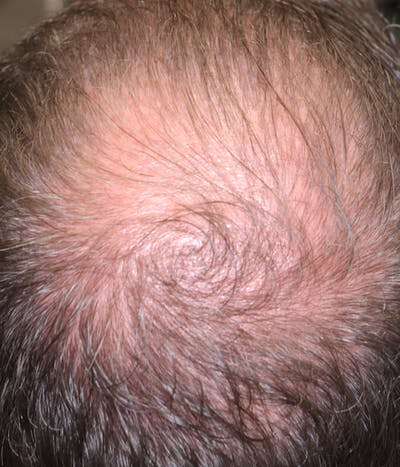 Hair Restoration with Exosomes Gallery - Patient 37796886 - Image 4
