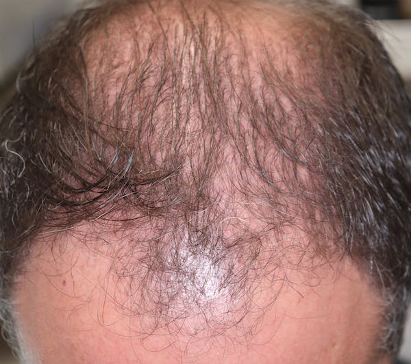 Hair Restoration with Exosomes Gallery - Patient 37796886 - Image 6