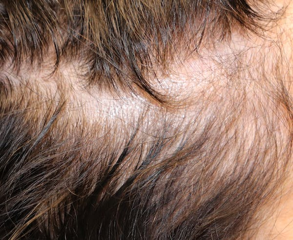 Hair Restoration with Exosomes Gallery - Patient 39167685 - Image 3