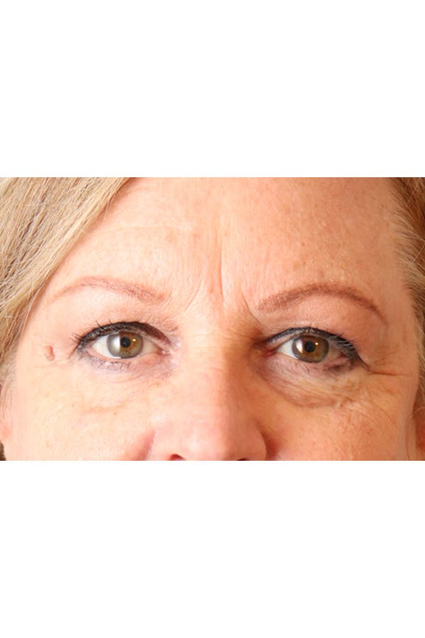 Eyelid Lift Gallery - Patient 29785295 - Image 3