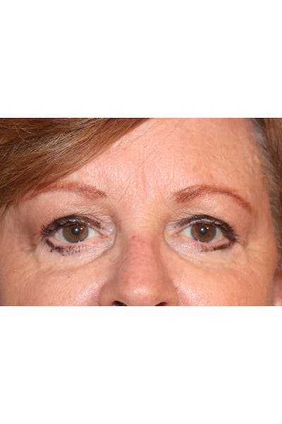 Eyelid Lift Gallery - Patient 29785295 - Image 4