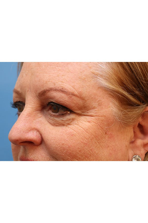 Eyelid Lift Gallery - Patient 29785295 - Image 5