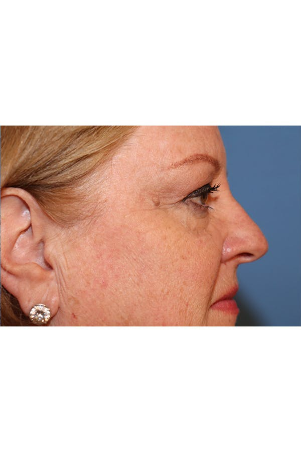 Eyelid Lift Gallery - Patient 29785295 - Image 7