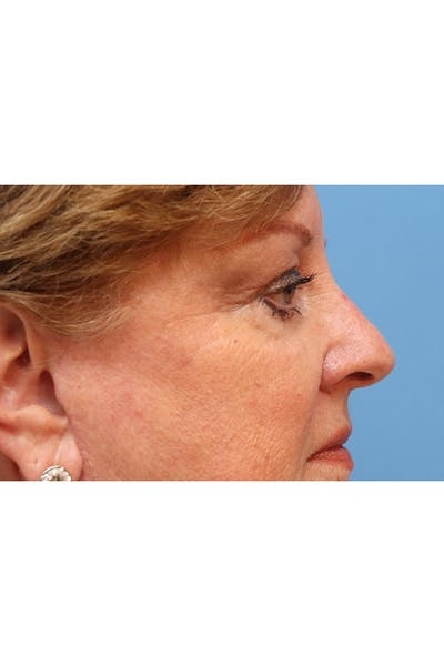 Eyelid Lift Gallery - Patient 29785295 - Image 8