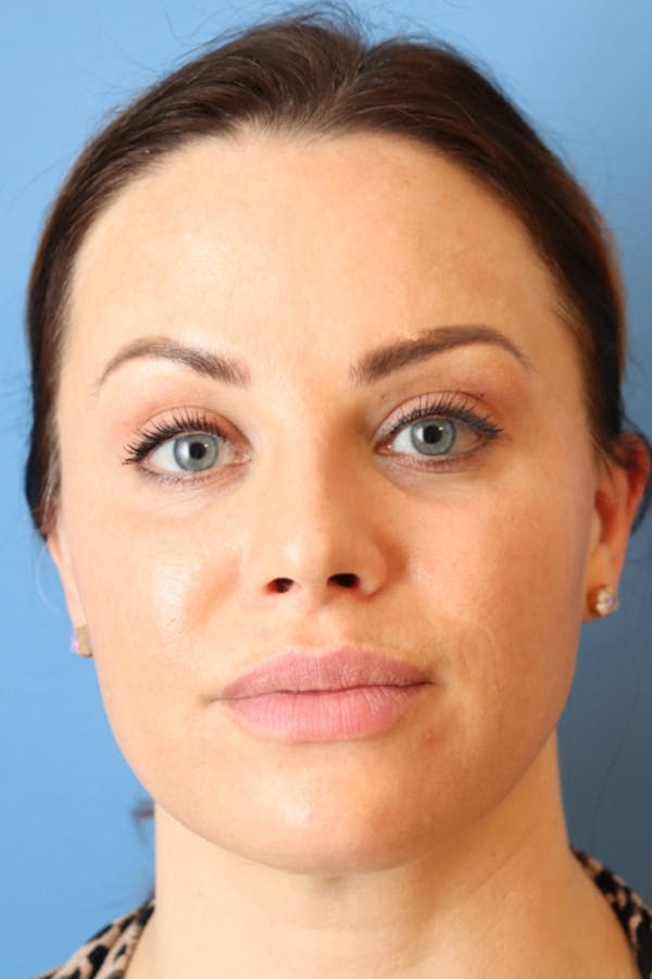 Buccal Fat Removal Gallery - Patient 49140231 - Image 1