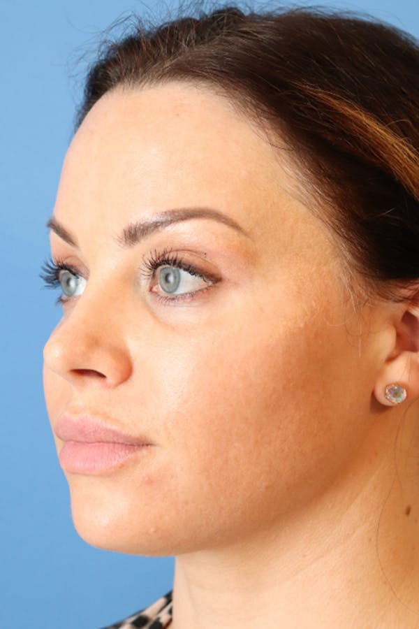 Buccal Fat Removal Gallery - Patient 49140231 - Image 3