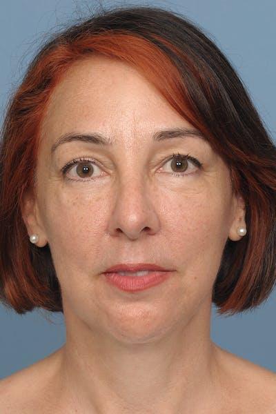Facial Implants Gallery - Patient 8376678 - Image 2