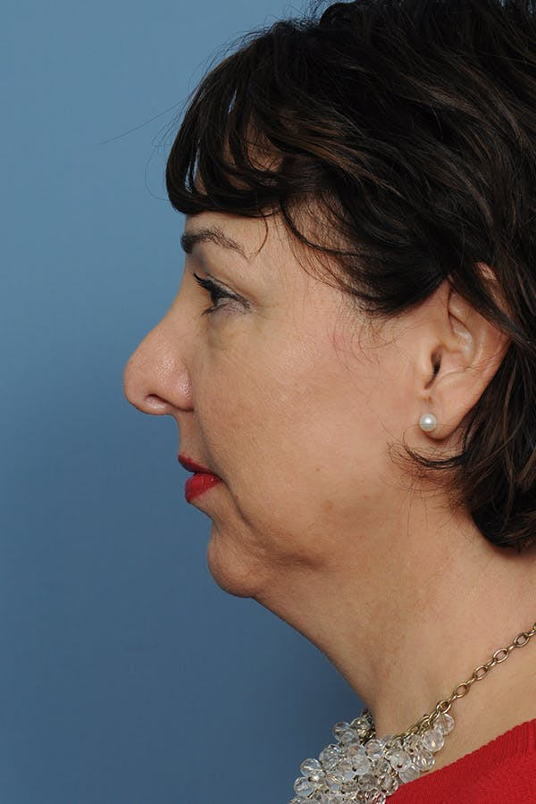 Harmonizing Chin Implant Gallery - Patient 12268216 - Image 3