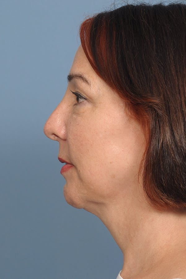 Harmonizing Chin Implant Gallery - Patient 12268216 - Image 4