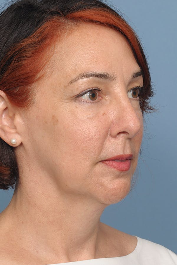 Harmonizing Chin Implant Gallery - Patient 12268216 - Image 10