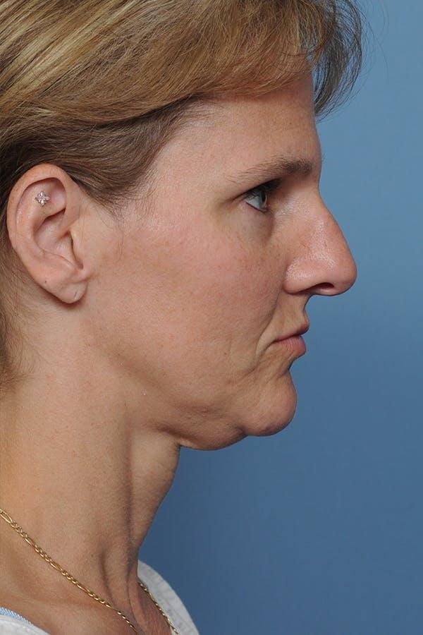 Rhinoplasty Gallery - Patient 8562223 - Image 3