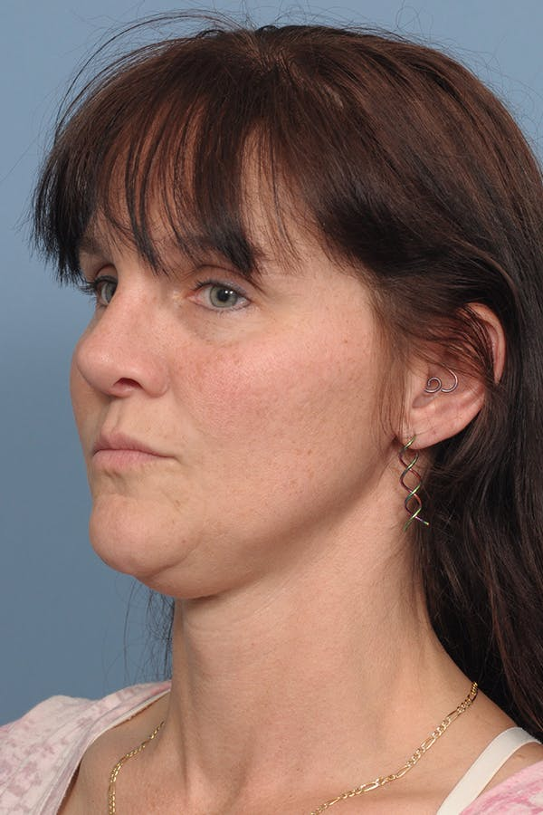 Rhinoplasty Gallery - Patient 8562223 - Image 10