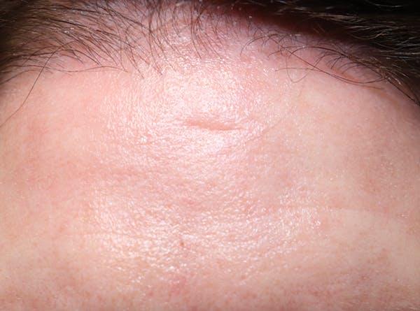 Scar Revision Gallery - Patient 49275875 - Image 1