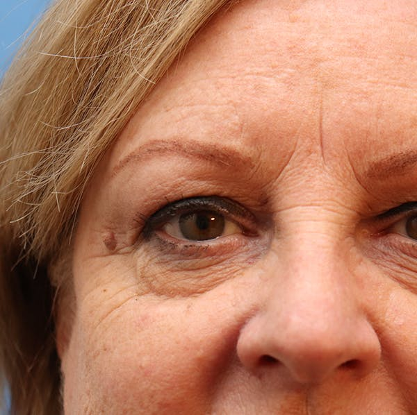 Blemish & Mole Removal Gallery - Patient 32769518 - Image 3