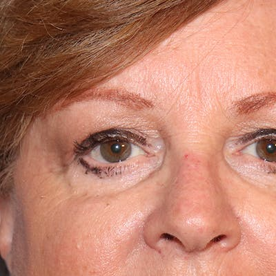 Blemish & Mole Removal Gallery - Patient 32769518 - Image 4