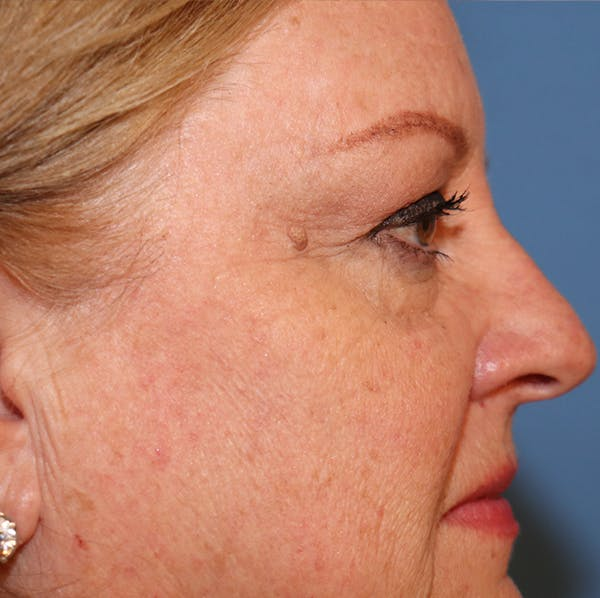 Blemish & Mole Removal Gallery - Patient 32769518 - Image 5