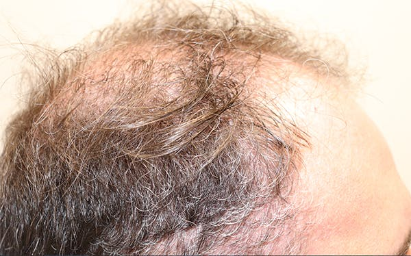 Hair Restoration with Exosomes Gallery - Patient 37796886 - Image 1