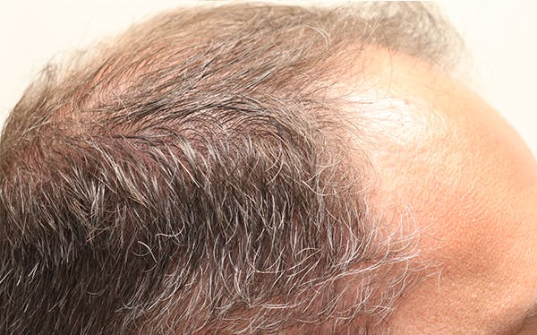 Hair Restoration with Exosomes Gallery - Patient 37796886 - Image 2