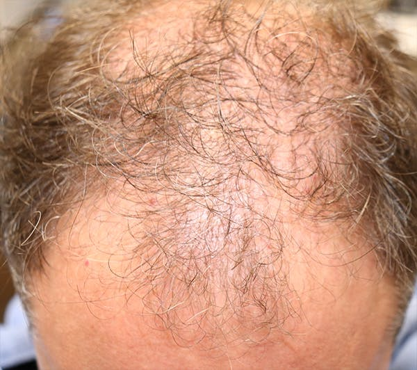 Hair Restoration with Exosomes Gallery - Patient 37796886 - Image 5