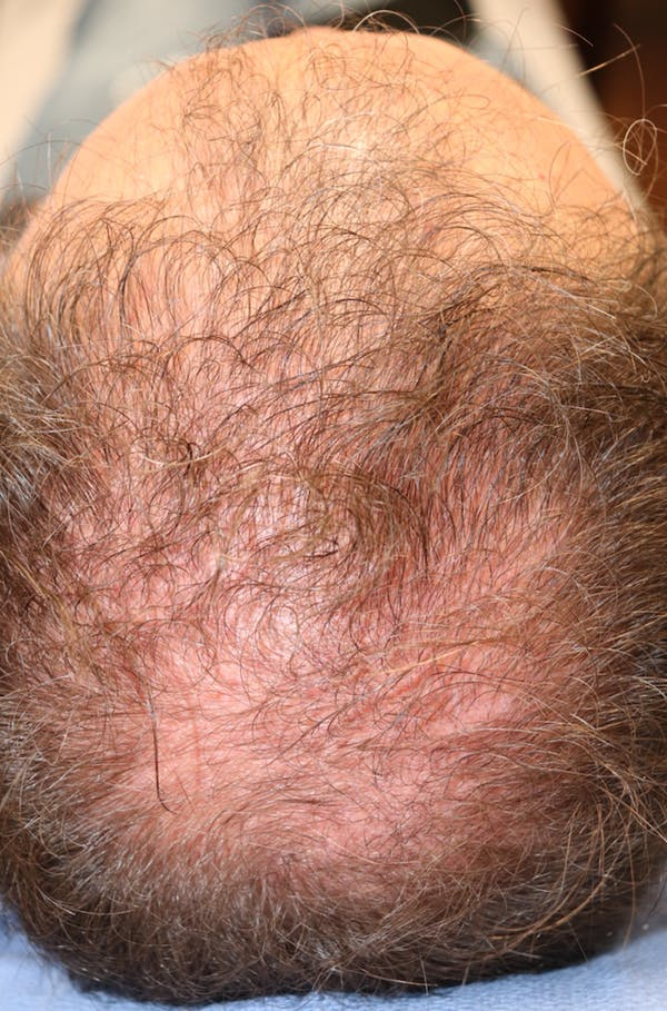 Hair Restoration with Exosomes Gallery - Patient 37796886 - Image 7