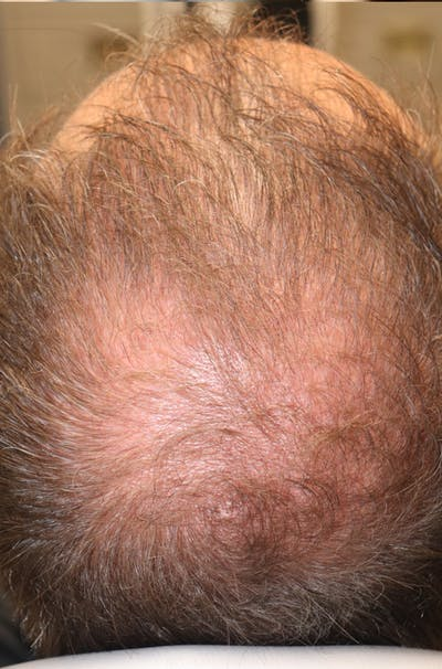 Hair Restoration with Exosomes Gallery - Patient 37796886 - Image 8