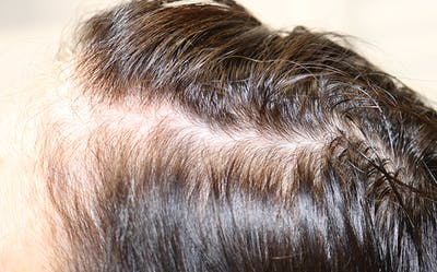 Hair Restoration with Exosomes Gallery - Patient 39167685 - Image 1