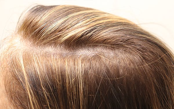 Hair Restoration with Exosomes Gallery - Patient 39167685 - Image 2