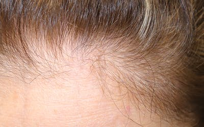 Hair Restoration with Exosomes Gallery - Patient 39167685 - Image 8