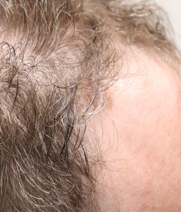Hair Restoration with Exosomes Gallery - Patient 49275868 - Image 1